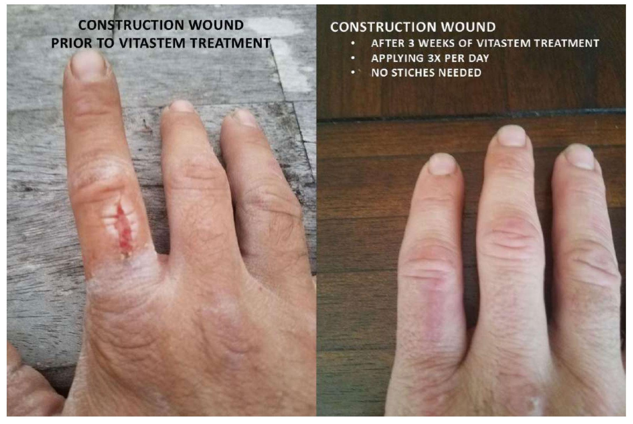 Construction Wound Case Study