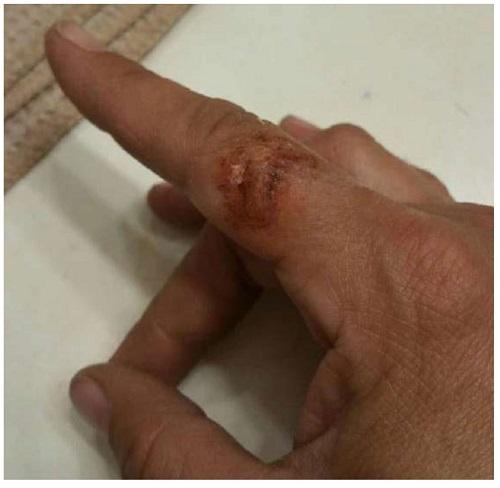 Kitchen knife Accident Case Study