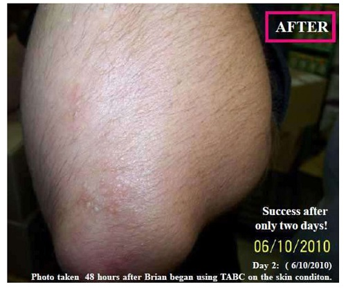 Prior to Treatment with Vitastem™